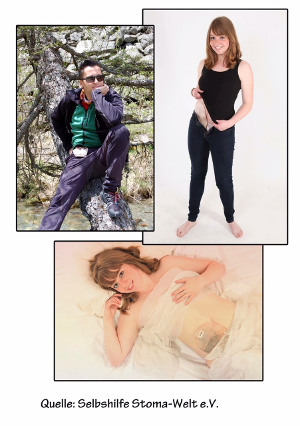 Abbildung: ein Stomaträger und eine Stomaträgerin zeigen ihren Beutel am Bauch